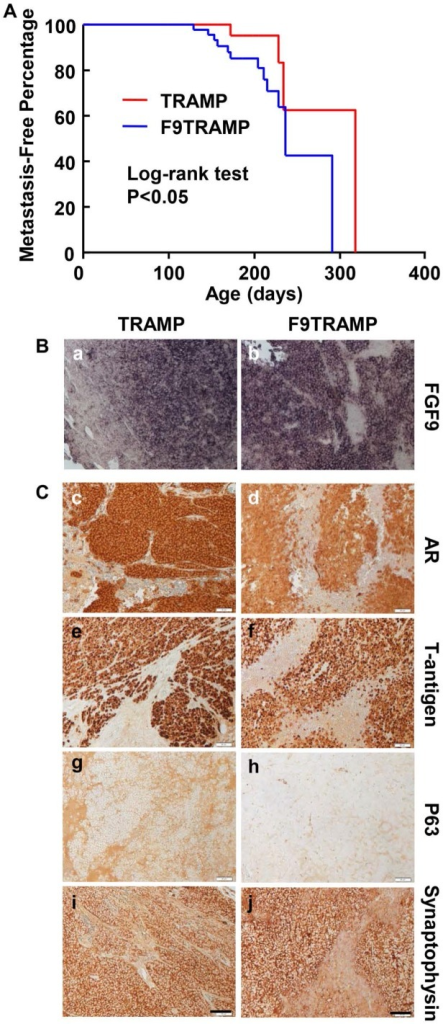 Overexpression of FGF9 promotes PCa metastasis in mice. A. Kaplan-Meier analysis of metastasis-free time in TRAMP and F9TRAMP mice. B. In situ hybridization showing Fgf9 expression in lymph node metastases of F9TRAMP and TRAMP tumors. C. Immunostaining of the indicated proteins in lymph node metastases of F9TRAMP and TRAMP tumors. Scale bars, 50 µm.