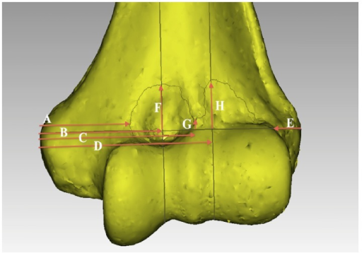 The dimensions measured were relative to the transepicondylar line (TEL). A: Horizontal distance along the TEL between the medial epicondyle (ME) and the medial edge of the synovial membrane (SM); B: horizontal distance between the ME to the apex of the SM overlying the coronoid fossa in the plane perpendicular to the TEL; C: horizontal distance between the ME and the nadir of the SM's insertion in the plane perpendicular to the TEL; D: horizontal distance between the ME to the apex of the SM overlying the radial fossa in the plane perpendicular to the TEL; E: horizontal distance along the TEL between the lateral epicondyle (LE) and the lateral edge of the SM; F: the vertical height from the TEL to the apex of the SM overlying the coronoid fossa in the plane perpendicular to the TEL; G: the vertical height from the TEL to the nadir of the SM overlying the lateral edge of the trochlea in the plane perpendicular to the TEL; H: the vertical height from the TEL to the apex of the SM overlying the radial fossa in the plane perpendicular to the TEL.