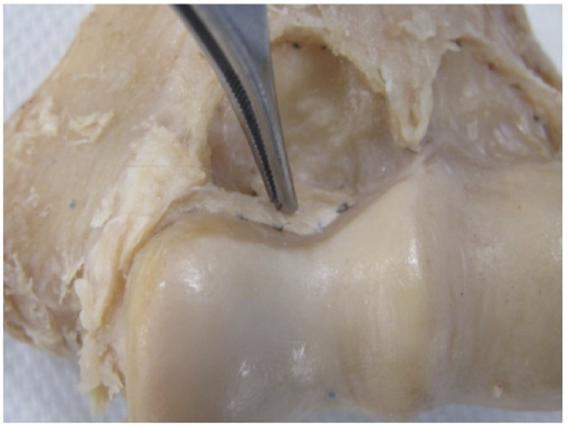 Medial extension of the synovial membrane's insertion overlying the trochlea was present in 81.8% of the specimens. This is an anterior view.