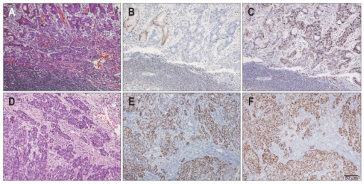 Representative histology and immunohistochemistry results. A microsatellite instability-high (MSI-H) case (A) exhibiting the loss of the expression of hMLH1 (B) and the intact expression of hMSH2 (C). Stromal lymphocytes were used as an internal positive control. The intact expression of hMLH1 (E) and hMSH2 (F) was evident in a microsatellite stable case (D).