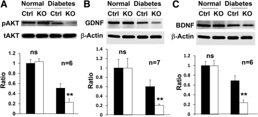 Expression of survival and trophic factors in the retina of conditional Vegfr2 KO mice (n ≥ 6). Loss of VEGFR2 in Müller cells significantly exacerbated the reduction of pAKT (A) 4 months after STZ injection and GDNF (B) and BDNF (C) 10 months after the onset of diabetes in the retina of conditional Vegfr2 KO mice. tAKT, total AKT. Error bar: SD. Ctrl, control; ns, not significant. **P < 0.01.