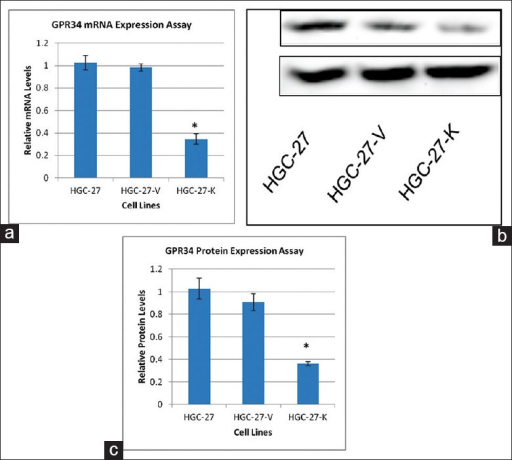 Validation of GPR34 knockdown in HGC-27 cells. (a) Knockdown of GPR34 expression in HGC-27 cells. The vertical axis shows the GPR34 mRNA levels relative to that of GAPDH. The data represent the mean ± SD of triplicate experiments; (b) Western blot validation of GPR34 knock-down p185YR cell model construction; (c) Densitometry analysis of Western blotting of GPR34 in HGC-27 cells (ImageJ) (*P< 0.01).