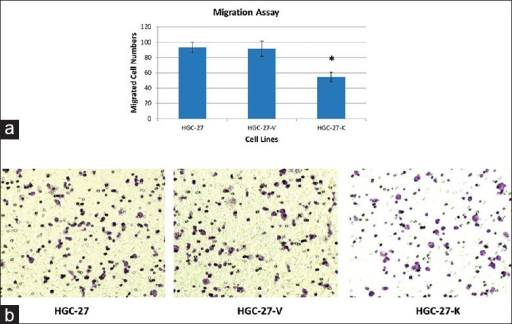 The effect of GPR34 on migration of HGC-27 cells In vitro. Migration assay was conducted using transwell chamber. (a) The number of migrated cells that penetrated transwell chamber was expressed as the mean number of cells in the 5 random fields identified within (*P < 0.01 vs. controls). The results shown here were for one representative experiment of three with similar results; (b) Cells on the lower surface of the filter were photographed.
