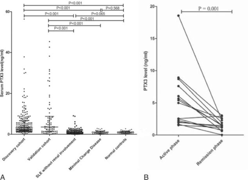 Serum PTX3 levels in different groups. (A) Serum PTX3 in patients with active lupus nephritis from discovery cohort, validation cohort, SLE without renal involvement, minimal change disease and normal controls. (B) Serum PTX3 levels in patients with lupus nephritis in active and remission phase.