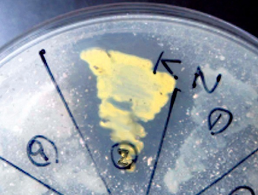 One of the culture results from the horn powder agar-translucency test: The strain in (corresponding to No. 2) appeared as a yellowish colony and presented a stronger and wider translucency characteristic around the colony on the horn powderagar than other strains. The colony in  on the right side of No. 2 showed weak translucency,whereas  had no translucency characteristic.