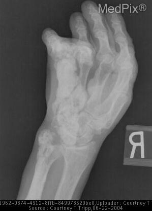 "Presumed long-standing melorheostosis involving the distal ulna, lateral metacarpals and lateral phalanges.  Notice the cortical hyperostosis resembling ""dripping wax"" down the shaft of the ulna and digits."