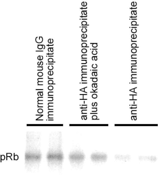 Dephosphorylation of pRB by anti-hemagglutinin immunoprecipitates from induced LLW02 cells. Samples were run in duplicate. Normal mouse IgG immunoprecipitate was used as a negative control. Anti-hemagglutinin immunoprecipitate, reaction run in the presence of okadaic acid (100 nM), a demonstrated PP1 inhibitor, was an additional negative control. Anti-hemagglutinin immunoprecipitate, revealing a decrease in 32P-labeled pRB band intensity, indicating removal of phosphate groups by 6His-HA-PP1α.