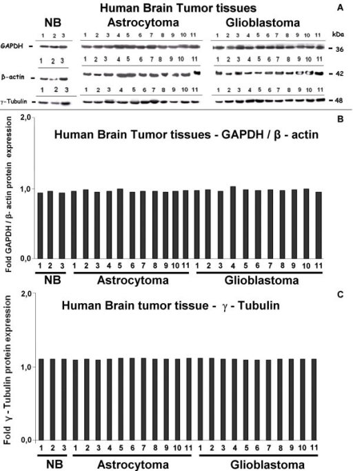 In-vivo protein expression of human housekeeping genes GAPDH, β-actin and γ-tubulin in biopsies of normal brain (NB), low-grade astrocytoma and glioblastoma. (A) Western-blot analysis of tissue lysates. GAPDH, β-actin and γ-tubulin are homogenously expressed by all analysed samples. (B) Expression intensities of the bands in the Western blot were densitometrically evaluated. The bar graphs show GAPDH expression after normalization to the corresponding expression of β-actin. No GAPDH upregulation in the more hypoxic glioblastoma samples in comparison to low-grade astrocytoma was detectable. (C) Densitometric evaluation of γ-tubulin expression in the human brain tumor tissues. Band intensities are shown as bar graphs. No regulatory effect of hypoxic conditions in vivo on housekeeping gene expression could be detected.