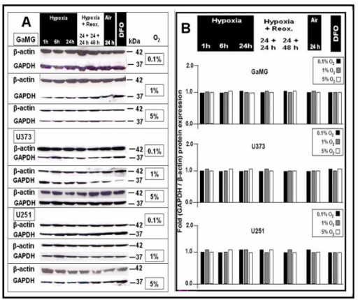 Effect of different hypoxic conditions on GAPDH protein expression in GaMG, U373 and U251 cells. For experimental settings refer to Fig. 2. (A) Western-blot analysis of β-actin and GAPDH protein expression. Shown is a representative experiment out of three. (B) Bar graphs showing expression strength of GAPDH after densitometric evaluation of signal strengths and normalization to the corresponding β-actin expression. Hypoxia did not regulate GAPDH expression in any direction.