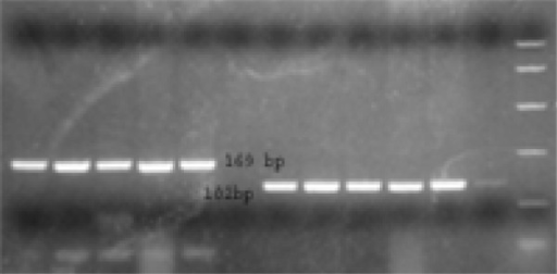 Ethidium bromide stained gel electrophoresis of TTV-PCR product after digestion with restriction enzyme.