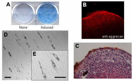 Multipotentiality of HDPCs isolated from human dental pulp. Isolated HDPCs were differentiated into chondrocytes (A, B, C) and adipocytes (D, E) under appropriate conditions described in Materials and Methods. (A) Differentiated chondrocytes were stained with alcian blue, and (B) the expression of aggrecan (a chondrocyte marker) was visualized by immunostaining. (C) Cell morphology of the differentiated chondrocyte was visualized by HE staining. Hypertrophic cells were observed at the peripheral area of the cell pellet. (D) Cell morphology of the differentiated adipocyte and (E) its high magnified image. Lipid accumulation was observed in the differentiated cells. Bars: 50 μm scale.