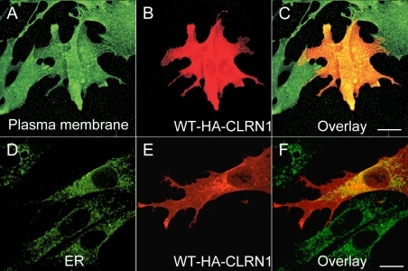 Cellular localization of WT CLRN1-HA protein in transfected BHK-21 cells. In panels B and E the cells were immunostained with HA antibody (red). In panel A the cells were immunostained with a plasma membrane specific antibody (green) and in panel D with ER specific antibody (green). The right-most panels (C and F) show the overlay of both CLRN1-HA and the organelle-specific double staining. Yellow-orange staining indicates an overlap of the CLRN1-HA protein (red) and subcellular markers (green). Cells were viewed with a confocal immunofluorescence microscope, magnification 63×. Scale bar represents 10 μm.
