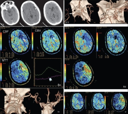 Initial NCCT (A) (at 1.5 h from stroke onset) showing hyperdense left MCA (black arrow), loss of insular ribbon (white open arrow), and obscuration with subtle hypodensity of the left lentiform nucleus (curved arrow). CTA volume-rendered images (B) show complete occlusion of the left intracranial ICA and M1 segment (black arrow on the right); note poor filling of the distal MCA branches, possibly through leptomeningeal collaterals (white arrow in the left image). Color-coded perfusion maps (C) for CBF, CBV, and MTT- ROI (white arrow) placed in the ischemic core—umbra—with mirror ROI (black arrow) in the contralateral hemisphere; relative values for CBF, CBV, and MTT are shown as a percentage of normal hemispheres (left hand bottom corner of each map). Time–attenuation curve showing lack of contrast arrival peak in the ROI on the affected side (arrow head). Color-coded perfusion maps (D) for CBF, CBV, and MTT- ROI (white arrows) placed in the ischemic penumbra, with mirror ROI (black arrows) in the contralateral hemisphere. The values (left hand bottom corner of each map) of rCBF and rCBV are greater, and rMTT lesser, than those in the umbra (see C). Post-thrombolysis CTA volume-rendered image (E) showing partial recanalization of the left cavernous ICA (black arrow) with occluded supraclinoid ICA and M1 segment and better filling of distal MCA branches (white arrow) as compared to the pre-thrombolysis CTA (see B). Color-coded perfusion maps (F) for CBF, CBV, and MTT- ROI (white arrow) placed in the ischemic penumbra, with mirror ROI (black arrow) in the contralateral hemisphere. rCBF and rCBV values are higher than the pre-thrombolysis values (left hand bottom corner of each map). However, there is no significant change in the size of the penumbra as compared to the prethrombolysis perfusion CT