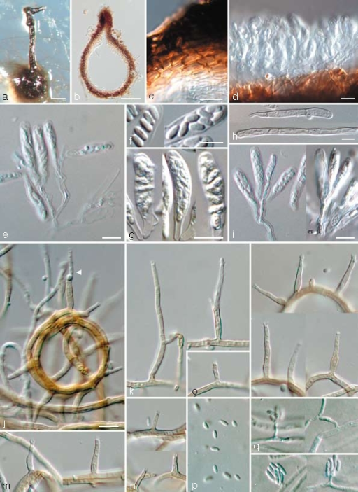 Togninia griseo-olivacea teleomorph and anamorph states. a. Perithecium on PDA; b. longitudinal section through perithecium; c. peridium; d, e. asci attached to ascogenous hyphae; f. ascospores; g. asci; h. paraphyses; i. asci attached to ascogenous hyphae. — j–p. Aerial structures on MEA; j. ring-like growth of mycelium with conidiophore (indicated by arrow head); k. conidiophores; l. type III phialides; m. type II phialides; n, o. type I phialides; p. conidia. — q, r. Structures on the surface of and in MEA; q. adelophialides with conidia; r. conidia; all from CBS H-19941 (holotype). a: DM, b–r: DIC. — Scale bars: a = 100 μm; b = 50 μm; c–i = 5 μm; j = 10 μm; j applies to j–r.