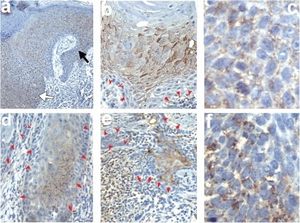 Localization of Fzd3 in non-melanoma skin cancer.Immunohistochemistry performed as in figure 1 performed on SCC (a–d), or BCC (e–f) shown at 40× (a), 100× (b,d,e), or 400× (c,f) magnification, respectively. Black arrows indicate staining intensity of Fzd3 in the epidermis used to assess staining intensity in tumors (denoted by white arrows). Red arrows denote boundary of tumors, pointing toward stroma.