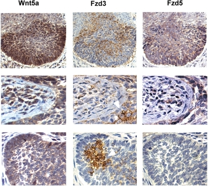 Spatial relationship of Wnt5a, Fzd3, and Fzd5 localization in basal cell carcinoma.Immunohistochemistry of serially cut samples stained for Wnt5a, Fzd5, or Fzd3 as indicated, magnification: 100× (top row), 200× (middle, bottom rows).