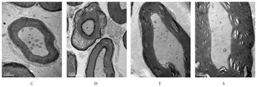 Effects of trigonelline on the micromorphology of sciatic nerve. C, control rats; D, diabetic rats; T, trigonelline-treated diabetes; S sitagliptin-treated diabetes.