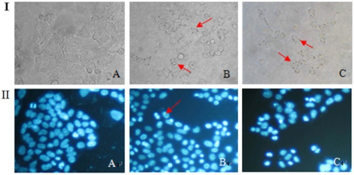 The morphological changes of cell death in HCT-8 cells.HCT-8 cells were treated with 0, 20, and 40 µmol/L of γ-tocotrienol for 24 h. The morphological changes of HCT-8 cells were detected under a light microcopy (I, Magnification: ×200). The cells were stained with DAPI (II, Magnification: ×200). Both figure showed that the cells treated with control (A), 20 (B), 40 µmol/L(C) for 24 h. Arrows indicate the vacuoles.