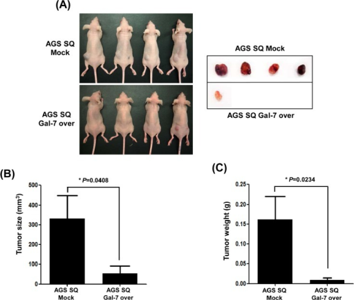 The effect of galectin-7 over-expression on tumor growth of xenografts in nude miceAGS SQ cells (100 μl; 1 × 106 cells) in Matrigel were implanted into Balb/c-nude mice to form subcutaneous xenografts. After 8 weeks the mice were sacrificed, the tumors were photographed (A), and tumor size (B) and weight (C) were measured. The p value for tumor size and weight (* p=0.048 and 0.0234 vs. Mock groups) was calculated using Student's t-test.