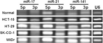 Co-expression of miRNA-5p and -3p pairs in colon cancer cells. miRNA expression was determined by stem-loop RT-PCR using U6 snRNA as a PCR control. The PCR products were analyzed in 4% agarose gels.