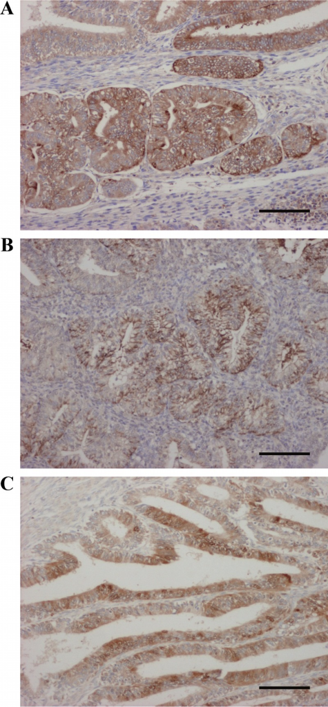 Immunohistochemistry for CRH (A), CRHR1 (B), and CRHR2 (C) in endometrial carcinoma specimens. Corticotropin-releasing hormone, CRHR1, and CRHR2 are immunolocalized in the carcinoma cells. Bar, 100 μm.