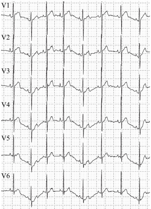 6-lead electrocardiogram of a normal adolescent White New Zealand male rabbit.The following defining aspects of the ECG are visible (5th validation criteria): fast QRS upstroke, no QRS fractionation, R-wave progressions from V1 to V6, positive T wave with longer upstroke than downstroke.