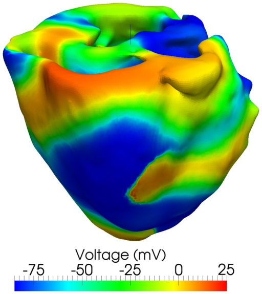 Sustained wave breakup and chaotic meandering during simulated Ventricular Fibrillation (VF).VF was induced using an S1-S2 protocol with the second stimulus applied between  and . The voltage contour plot is shown at .