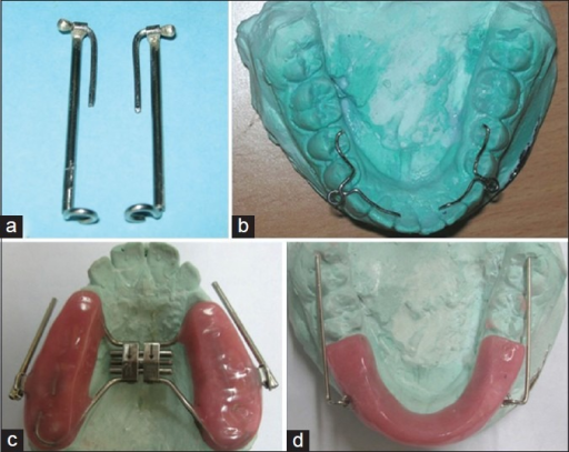 Design of the splinted mandibular protraction appliance (MPA). (a) The ball pins inserted into the smaller section of the T-tubes; (b) Mandibular circular loops; (c) Maxillary component of the splinted MPA showing the position of the molar tubes in the maxillary acrylic splint. Note the long axis of the round headgear tube is parallel to the occlusal plane and also to the midpalatal raphe and (d) Mandibular component of the splinted MPA