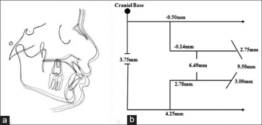 Treatment changes by the splinted mandibular protraction appliance (mandibular protraction appliance (MPA). (a) Cephalometric superimposition showing Class I molar and skeletal relationships and improvement of soft tissue harmony and (b) Pitchfork analysis (pretreatment vs. postsplinted MPA-IV)