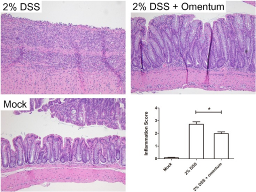 Omentum cells decreases DSS-induced colitis. Mice were administered 2% DSS for 10 days and then injected intraperitoneally with omentum cells (2% DSS + omentum) or PBS (2% DSS). Representative H&E stained tissue sections are shown compared to mock treated mice (no DSS). The histologic inflammation scores of the colon were examined at day 21. *p-value <0.05 using the Mann-Whitney U test. Data are from 8 mice per group. Bars, 100 μm.