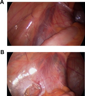 (a) A distended left spermatic vein before clipping and (b) a collapsed spermatic vein after clipping.