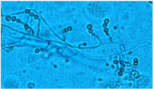 Microscopy. Lactophenol cotton blue stain. Note many overlapping conidiophores and conidia of Scopulariopsis sp. grown from patient's BAL sample fluid (10x).