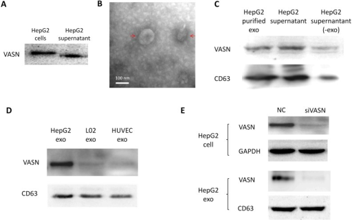 VASN protein secretion and localization. (A) Western blot analysis of VASN protein in cell extracts and supernatant of HepG2 cells. (B) Electron micrograph of exosomes isolated from supernatants of HepG2 cells. Bar represents 100 nm. (C) VASN expression in exosomes, supernatant, and exosomes-depleted supernatants. The exosomal marker protein CD63 was also detected. (D) Western blot analysis of VASN protein in exosomes derived from HepG2, L02, and HUVECs. CD63 was used as a loading control. (E) Western blot analysis of VASN protein in cell lysates (top panel) and exosomes (bottom panel) from HepG2 cells transfected with NC or VASN siRNA (siVASN). GAPDH and CD63 were used as loading controls for cell lysates and exosomes, respectively.