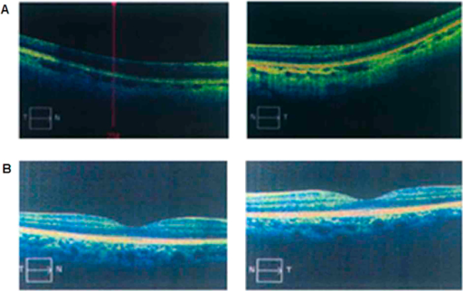 Photographs of OCT examination.Compared with a normal control (B), the patients (A) carrying with GPR143 gene mutations showed macular hypoplasiain OCT examination.