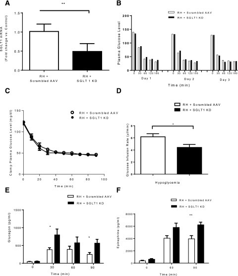 RH study. A: SGLT1 shRNA reduced VMH SGLT1 mRNA levels by ∼51% of rats exposed to RH. B: Blood glucose during the 3 days of insulin injection before clamp showed no significant difference between the control and SGLT1 knockdown (KD) groups. C: Plasma glucose concentrations during the clamp in the control and SGLT1 KD groups. D: GIRs during the clamp were diminished in RH + SGLT1 KD rats compared with RH + scrambled AAV. Plasma glucagon (E) and epinephrine (F) levels were increased in SGLT1 KD rats. Data are mean ± SEM. *P < 0.05 vs. RH + SGLT1 KD; **P < 0.01 vs. RH + SGLT1 KD.