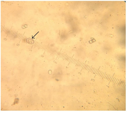 Subspherical Eimeria bateri oocyst with a polar granule using ocular micrometer (×40).