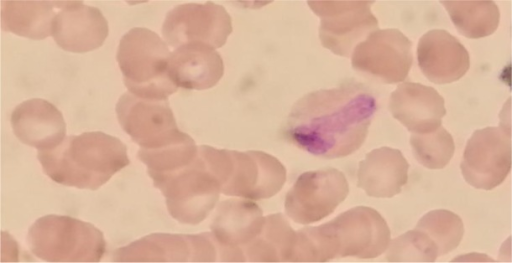 Gametocyte of P. falciparum in a thin blood smear (Original picture)
