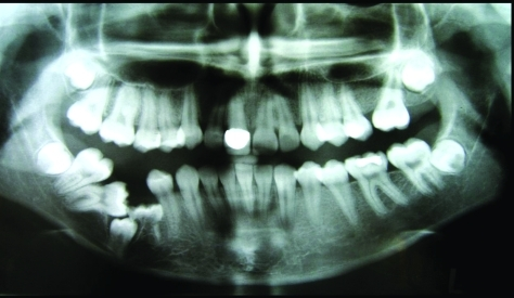 Panoramic radiography of the patient.