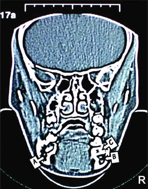 CT images of the patient. The position of right inferior dental canal can be seen clearly as a dark area but left inferior dental canal cannot be seen due to the impacted second premolar. (A; Right Mandibular Canal, B; Left Mandibular Canal, C; Tipped Right First Molar, D; Impacted Right Second