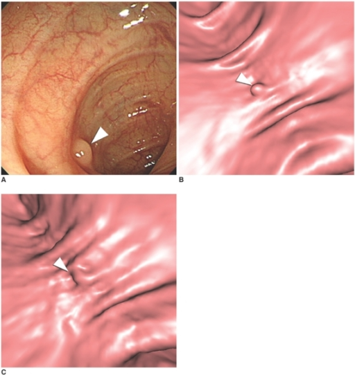 A 65-year-old male with a 6-mm tubulovillous adenoma in the sigmoid colon.A. Optical colonoscopy shows a sessile polyp (arrowhead) in the sigmoid colon.B. 3D supine endoluminal view shows the corresponding polyp (arrowhead) in a well-distended segment of the sigmoid colon.C. 3D endoluminal view of the same area as figure B, with the patient in a prone position, shows the same lesion (arrowhead) obscured by suboptimal distention.
