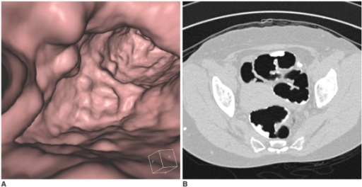 A 54-year-old female with a large amount of tagged fecal residue in the sigmoid colon.A. The 3D endoluminal view shows many polypoid and mass-like structures in the sigmoid colon. Examining each polypoid or mass-like structure to distinguish a true polyp/mass from fecal residue is tiresome. Additionally, lesions buried under fecal material are not detected at all during the 3D fly-through.B. Using a wide-window setting (width: 1500 HU, level: -400 HU) for the 2D transverse image, all the pseudolesions (i.e. tagged fecal residue) are easily recognized.