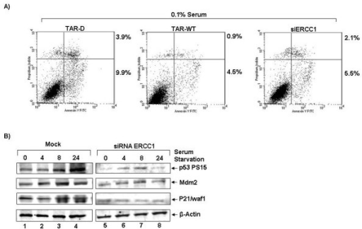 Anti-apoptotic effect validated through the repression of ERCC1. (A) HeLaT4 were transfected with TAR-D, TAR-WT, siEGFP, or siERCC1 RNA. Twenty-four hours after transfection media were replaced with low serum (0.1%) media, and the cells were cultured for 96 hours. Apoptosis was measured at 96 hours after serum starvation using FACs analysis. Data are representative of two experiments. (B) 293T cells were transfected with siRNA against ERCC1 (lanes 5–8) or mock (lanes 1–4) for twenty-four hours, and then the media was replaced with low serum media. Cells were harvested for Western blot analysis at 0, 4, 8 and 24 hours after serum starvation and Western blotted for phosphor-p53 Ser15, Mdm2, p21 and β-actin. Pictured Western blots utilized 20 micrograms of total protein per lane.