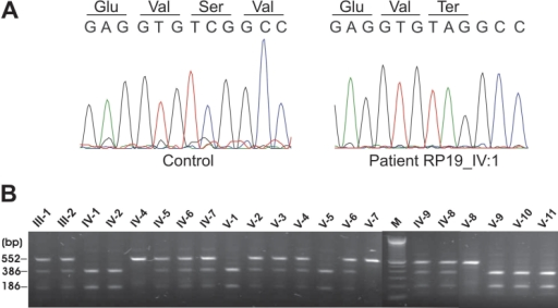 Sequence chromatograms and segregation analysis of the p.S205X GRK1 variant. A: Sequence chromatogram of part of exon 1. Sequence of normal control sample (left panel) and an affected individual IV-1 (right panel) with the homozygous mutant sequence c.614C>A. B: StuI restriction analysis of the 552 bp PCR products of exon 1 in all family members. Fragments were resolved on an 1.5% agarose gel. Individuals with a single fragment of 552 bp were identified as homozygous normal since they did not contain the restriction site for StuI. Those with three fragments (552 bp, 366 bp, and 186 bp) were heterozygous carriers of the mutation, and those with two fragments (366 bp and 186 bp) carried the mutation homozygously.