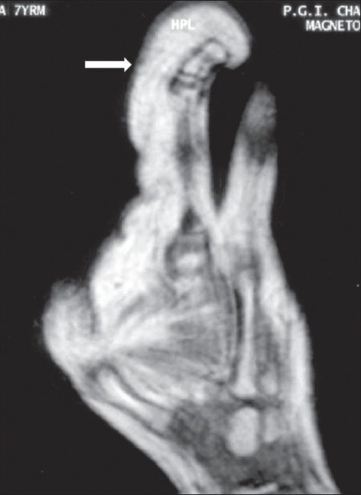Case 1: Sagittal T1W MRI image reveals proliferation of fatty tissue (arrows) on the volar aspect of the index finger with signal intensity similar to that of subcutaneous fat; there is dorsal angulation of the affected digit