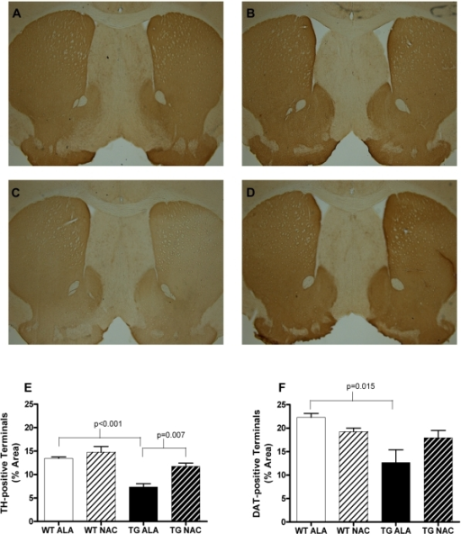 NAC increases striatal area occupied by TH-positive terminals in SNCA-overexpressing mice at 12 months of age.A–D. Representative images of TH-immunostained 30 µm sections of alanine or NAC-treated wild-type or transgenic mouse striatum. A. Wild-type, alanine treated; B. Wild-type, NAC treated; C. Transgenic, alanine treated; D. Transgenic, NAC treated. E. Density of TH-positive terminals in the striatum of alanine or NAC-treated wild-type or transgenic mouse striatum. F. Density of DAT-positive terminals in the striatum of alanine or NAC-treated wild-type or transgenic mouse striatum. Data in E and F were analyzed using a 2-tailed Student's t-test. All relevant statistically significant comparisons are indicated on the graph. WT ALA N = 4, WT NAC  = 6, TG ALA  = 4, TG NAC  = 3.