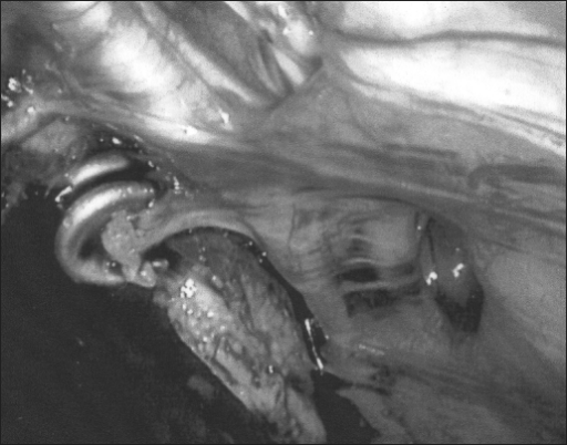 Laparoscopic appearance of the side opposite of the presenting hernia. The fascial defects at the site of the tacks are easily apparent.