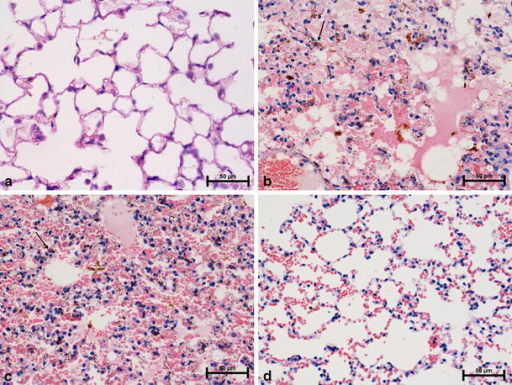 "Effect of LF on OVA-induced lung injury—histopathological changes. Mice were immunized with OVA and the allergic pleurisy reaction was elicited after 14 days as described in ""Materials and methods"". Bovine LF (100 μg/dose) was given bucally to mice 24 and 3 h before elicitation of the allergic response. The histological analysis of lungs was performed 24 h later. a naive mice; b, c control, sensitized mice (OVA-sensitized mice which were given the eliciting dose of OVA and no LF); d mice treated with of BLF. a The lung of naive mouse (normal appearance); b severe edema and hemosiderin deposits in the lungs of sensitized control mouse; c alveolar hemorrhage and hemosiderosis in the lung of sensitized control mouse; d lung congestion of LF-treated mouse. Arrows indicate siderophages, H&E, original magnification× 400"