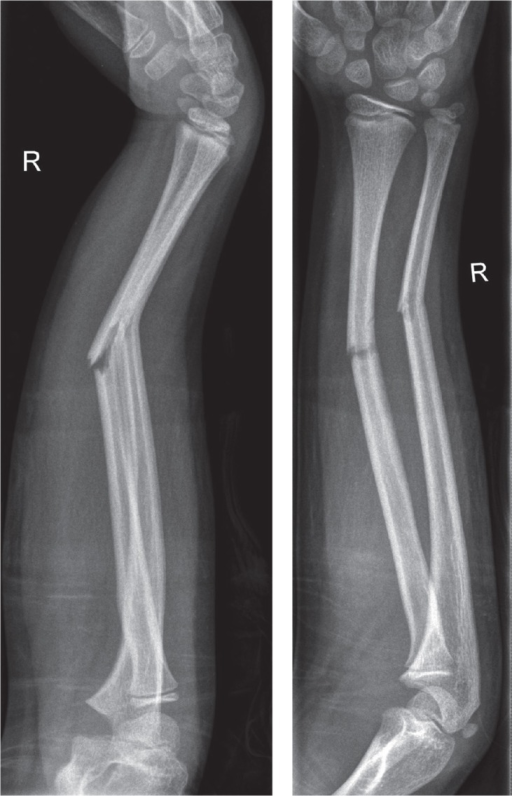 A displaced diaphyseal both-bone fracture.