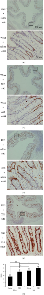 XLS stimulated enterocyte proliferation in DSS-treated rats. (a) Water + saline; (b) water + XLS; (c) DSS + saline; and (d) DSS + XLS (immunohistochemistry, ×40 and ×400 original magnification). (e) Cell proliferation was evaluated by LI, representative of the immunoreactivity of Ki-67 in colon sections. Numbers in brackets represent sample numbers of each group. **P < 0.01 versus water + saline, &&P < 0.01 versus water + saline, and $P < 0.05 versus DSS + XLS.