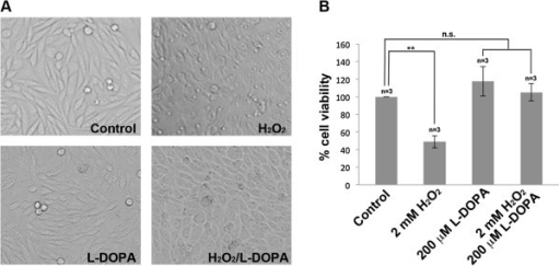 Cell morphology and cell viability of SH-SY5Y cells in response to H2O2, L-DOPA and H2O2/L-DOPA treatments. (A) Cell morphology of SH-SY5Y cells in response to eight hours of 2 mM H2O2, 200 μM L-DOPA and 2 mM H2O2/200 μM L-DOPA treatments. (B) Neutral red cell viability assays of SH-SY5Y cells in response to eight hours of 2 mM H2O2, 200 μM L-DOPA and 2 mM H2O2/200 μM L-DOPA treatments. Each data point is the average of three replicate samples and presented as means ± SD. Standard deviations are indicated by error bars. **p < 0.01.